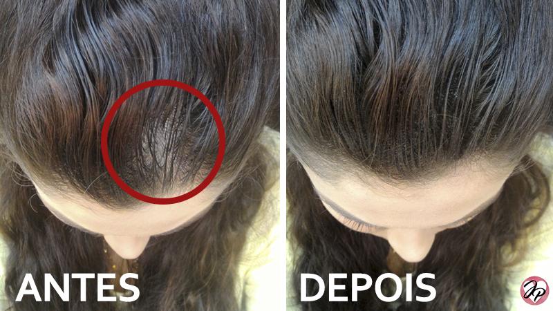 antes e depois cabelo falhado
