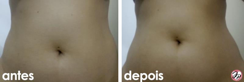 antes e depois ada tina redutor abdominal